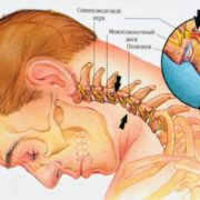 как лечить остеохондроз шеи