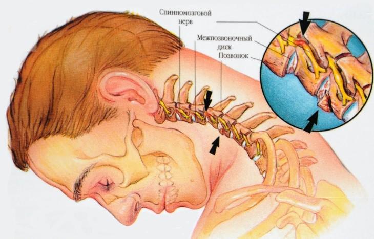 Лечение и симптомы остеохондроза шеи