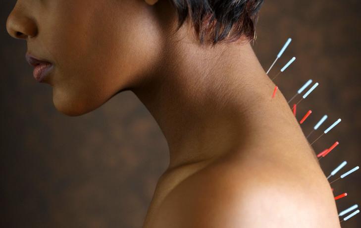Иглоукалывание при шейном остеохондрозе: особенности проведения процедуры