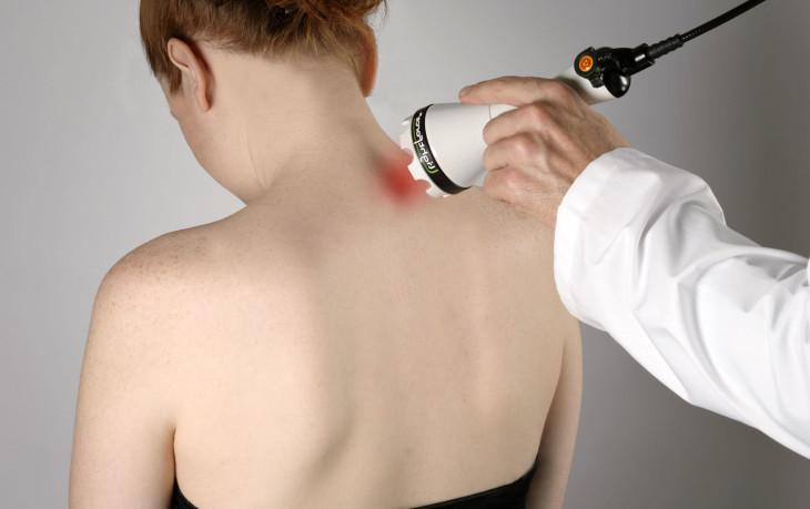 Физиотерапия при шейном остеохондрозе: эффективные процедуры