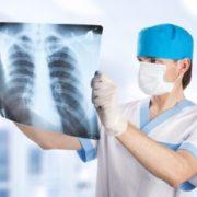 хронический остеохондроз