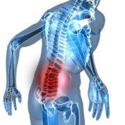 остеохондроз нижнего отдела позвоночника