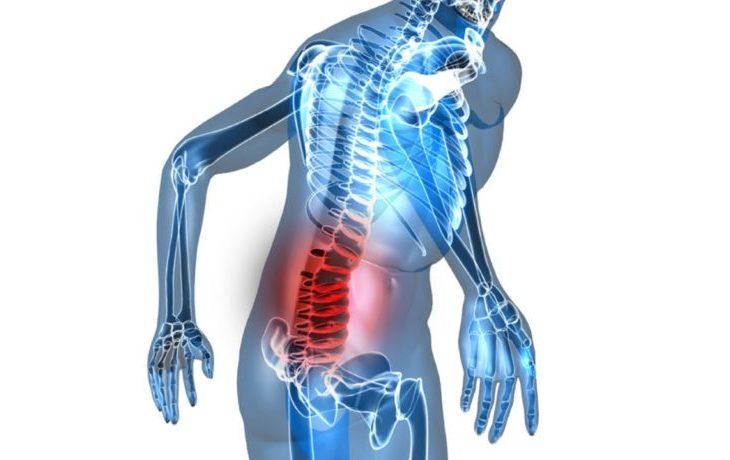 Симптомы остеохондроза крестца, нижнего отдела позвоночника, руки