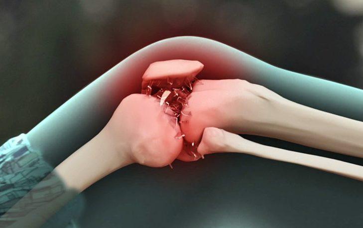 Деформирующий остеохондроз: причины, симптомы, лечение